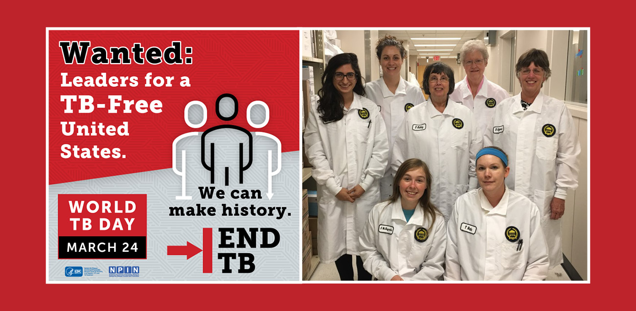 State lab recognized ahead of World TB Day